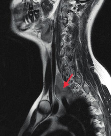MR, červená šipka ukazuje na tumor.