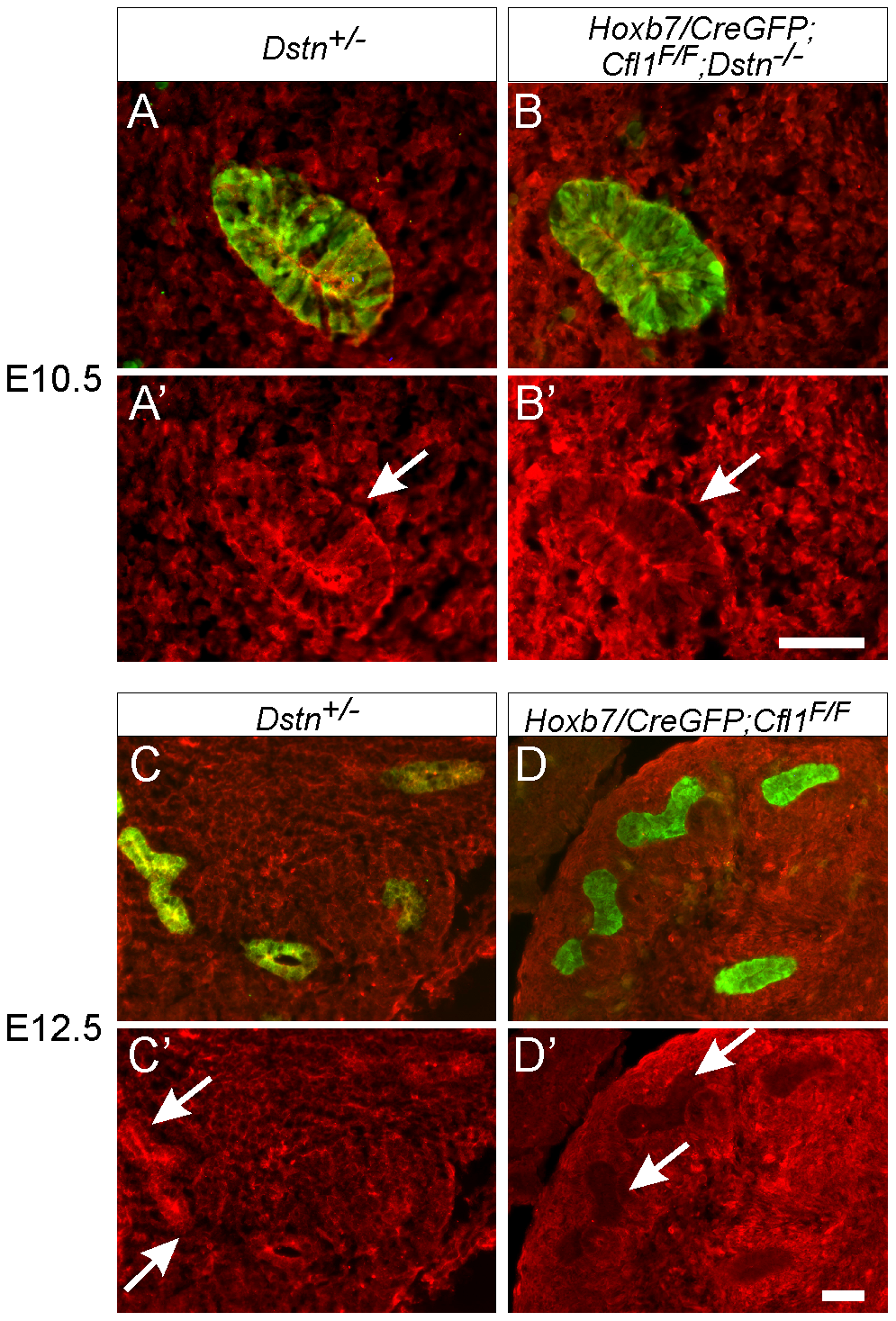 Efficiency of <i>Hoxb7/CreGFP</i>-mediated deletion of <i>Cfl1</i> as evaluated by Cofilin1 antibody staining.