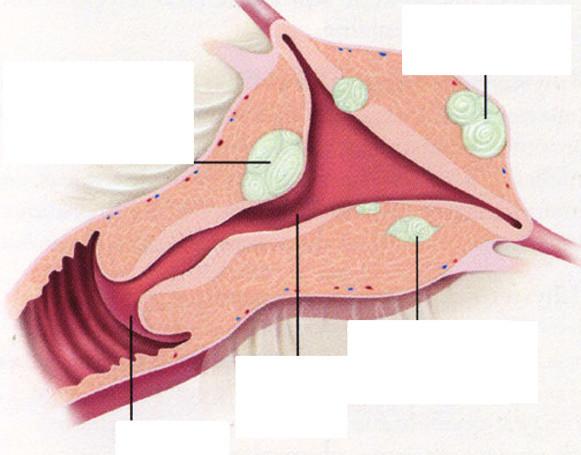 Klasifikace myomů podle lokalizace vzhledem k jednotlivým vrstvám děložní stěny.
