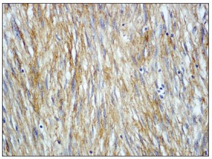 Nádorové buňky exprimují c-kit (CD117), zvětšeno 200x  Fig. 3. The tumor cells expressing c-kit (CD117), enlargement 200x