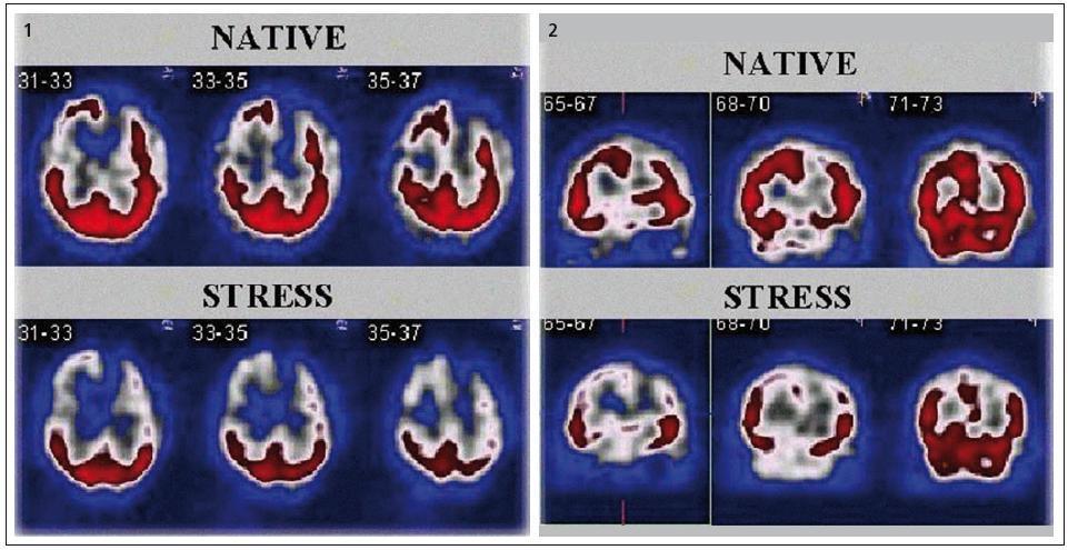 , 2. Příklad scintigramů SPECT mozku. Na obr. 1 jsou vybrané řezy v rovině transverzální, na obr. 2 v rovině koronární. První řádek obou obrázků zobrazuje řezy provedené za nativních podmínek, ve druhém řádku jsou řezy zhotovené po zátěži CO<sub>2</sub>. Na nativních scintigramech je defekt v akumulaci radiofarmaka frontálně vlevo a parietálně vpravo. Po zátěži CO<sub>2</sub> došlo ke zhoršení nálezu frontálně vlevo a parieto-temporálně oboustranně. Cerebrovaskulární rezervní kapacita je u tohoto pacienta výrazně snížená.