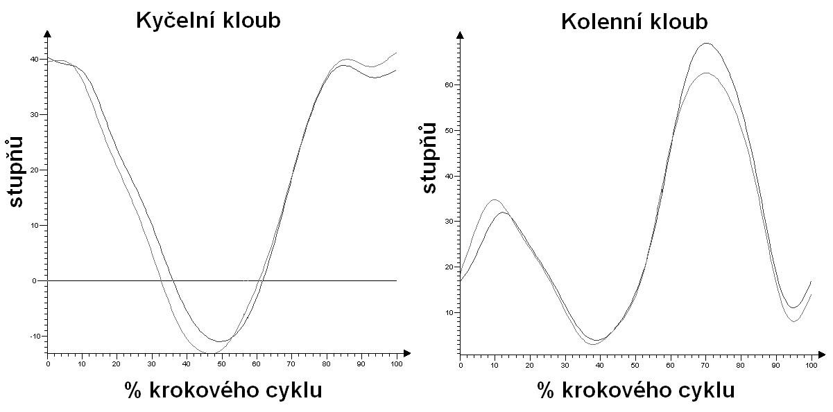 Průběh flexe a extenze v kyčelním a kolenním kloubu během krokového cyklu na pravé a levé končetině.