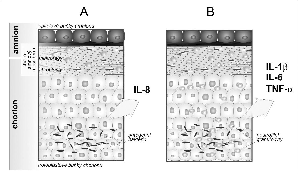 Schematické znázornění chorioamnionitidy A. Mikrobiální invaze aktivuje buňky plodových obalů k produkci chemotaktického cytokinu interleukinu 8. B. Jako odpověď na zvýšené koncentrace IL-8 infiltrují neutrofily matky do plodových obalů a spolu s placentálními makrofágy tvoří prozánětové cytokiny IL-1β, IL-6 a tumor nekrotizující faktor (TNF) α. Zvýšení hladin cytokinů je možné sledovat v plodové vodě.