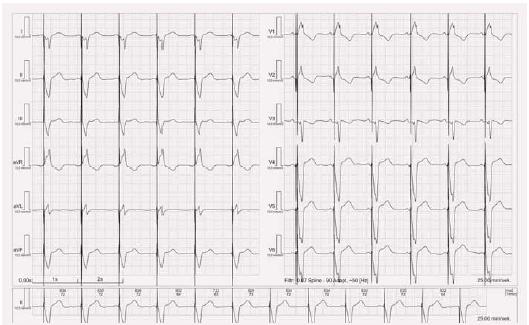 EKG stimulace levé komory.