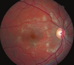 Pravé oko, mesiac po zahájení liečby, výrazné vstrebávanie belavých ložísk na sietnici.