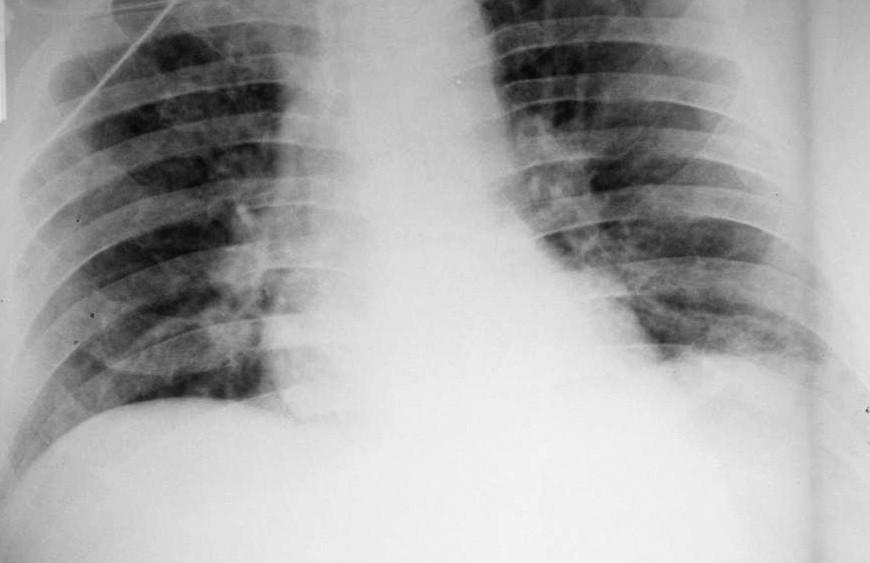 Obr. 6a Negativní RTG snímek plic