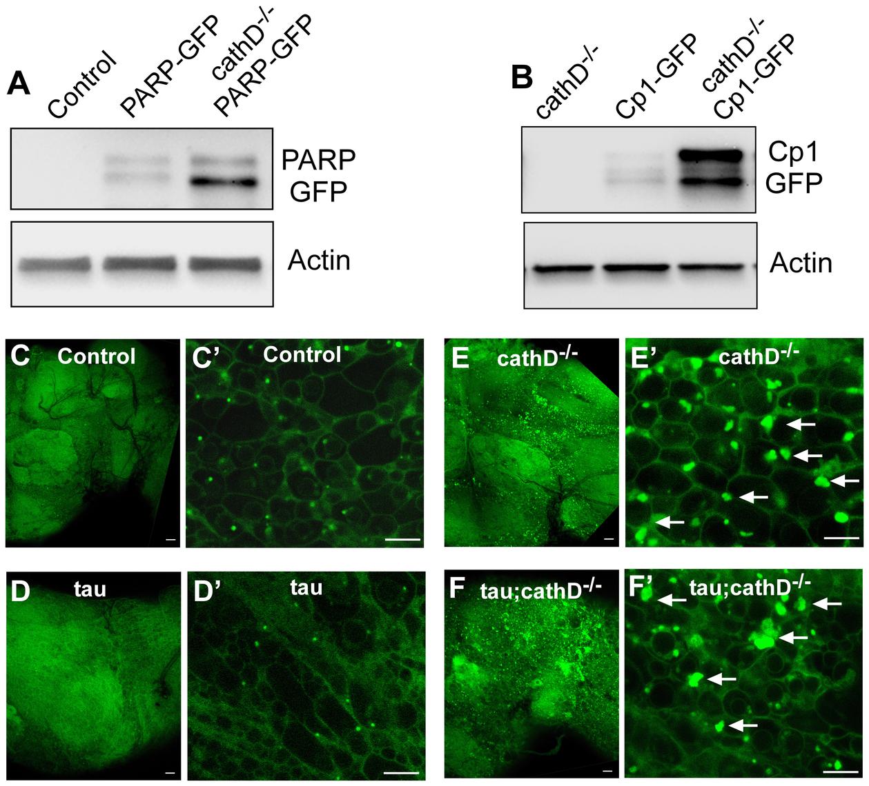 Widespread lysosomal abnormalities in cathepsin D deficient brains.