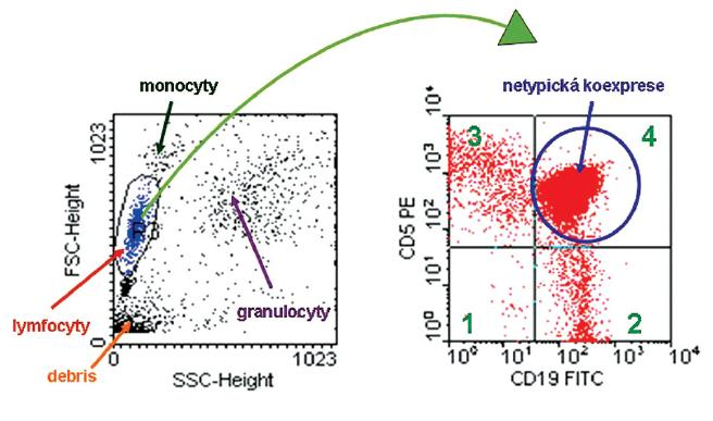 """Analýza cytometrických dat, vzorek periferní krve se suspekcí na lymfoproliferativní onemocnění. Dot-plot SSC/FSC znázorňuje rozložení buněk podle granularity (SSC) a velikosti (FSC) – dle těchto parametrů rozlišujeme buněčné subpopulace lymfocytů, monocytů, granulocytů a debris. V rámci počítačového zpracování naměřených dat je možné """"zagatovat"""" určitou subpopulaci, u které dále vyhodnotíme expresi či absenci námi měřených parametrů. """"Gatujeme"""" populaci lymfocytů a ve druhém dot-plotu CD19 FITC / CD5 PE již zobrazujeme pouze vybrané buňky. V tomto dot-plotu můžeme rozpoznat čtyři buněčné subpopulace: v kvadrantu 1 – buňky neexprimující ani molekulu CD19 ani molekulu CD5, buňky se vyznačují pouze svou autofluorescení; v kvadrantu 2 – buňky s expresí molekuly CD19, po vazbě fluorescenční protilátky anti-CD19 FITC se zvýšila intenzita jejich fluorescence (B-lymfocyty); v kvadrantu 3 – buňky s expresí molekuly CD5, po vazbě fluorescenční protilátky anti-CD5 PE se rovněž zvýšila intenzita jejich fluorescence (T-lymfocyty); v kvadrantu 4 – buňky s koexpresí molekuly CD19 a CD5 (aberantní koexprese u nádorových buněk) Koexprese molekuly CD19 a CD5 je typická pro chronickou lymfocytickou leukémii a pro lymfom z buněk pláště, přesnější určení je potom možné díky podrobnější imunofenotypizaci."""