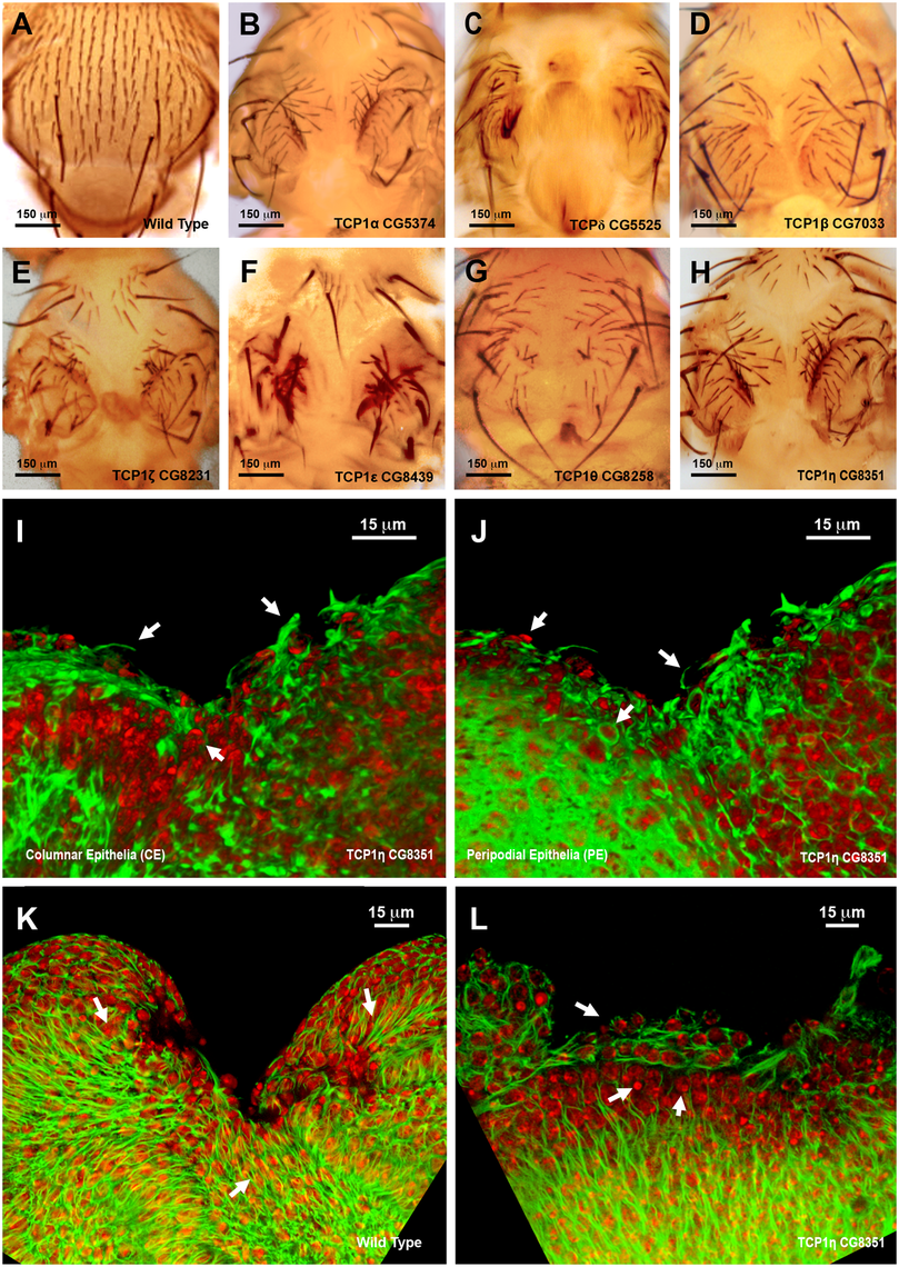 Thorax fusion and impaired healing phenotypes of TCP1 subunits.