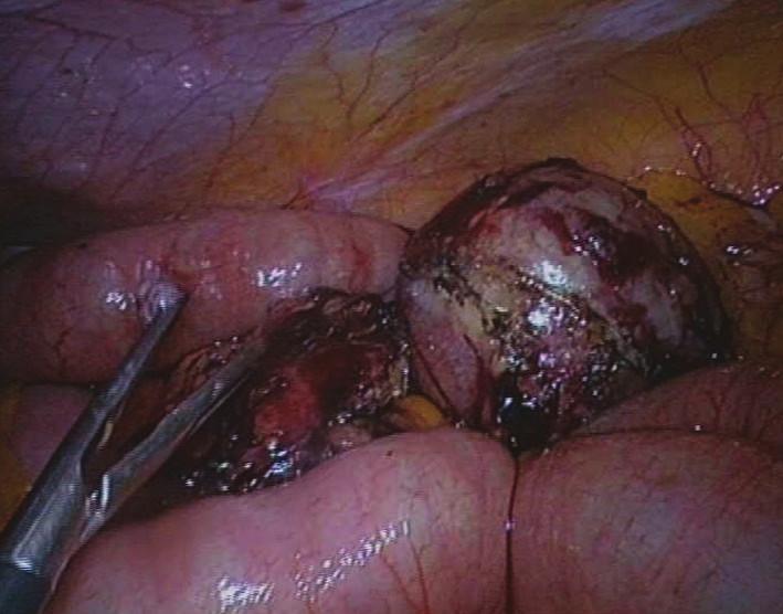 Nádor mezenteria před extrakcí minilaparotomií Fig. 6: Mesenteric tumour before extraction by minilaparotomy