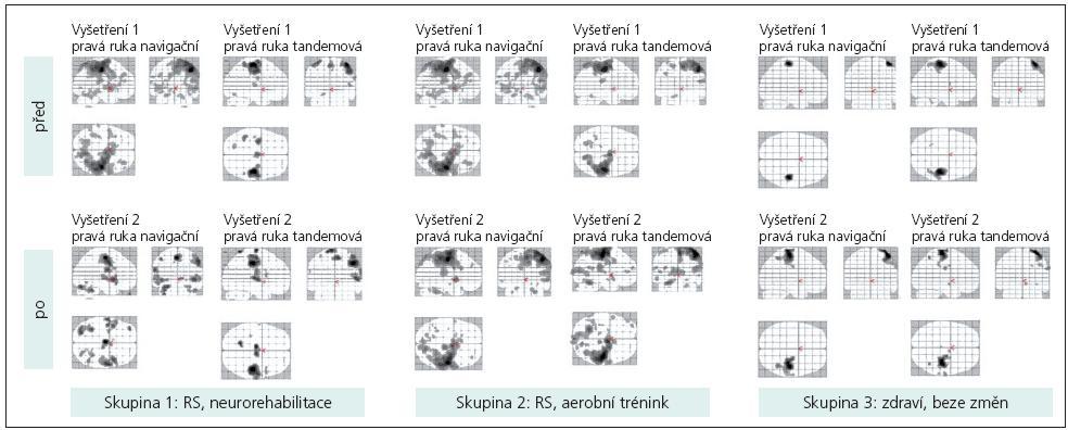 Magneticko rezonanční obraz u vybraných probandů z každé skupiny na začátku a na konci programu. U pacienta, který absolvoval neurorehabilitaci, můžeme sledovat změnu vzorce mozkové aktivace.