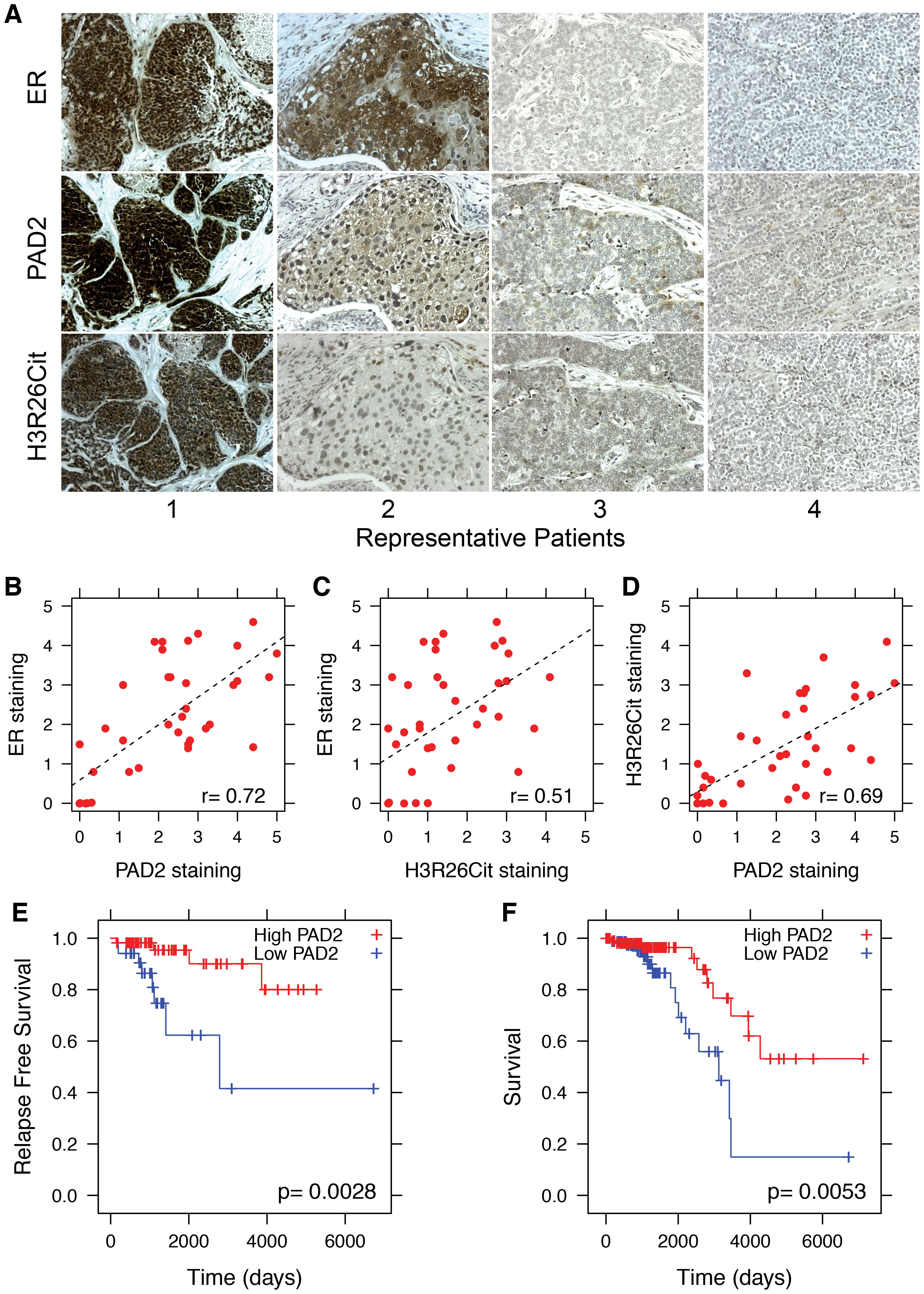 PAD2 expression correlates with breast cancer survival.