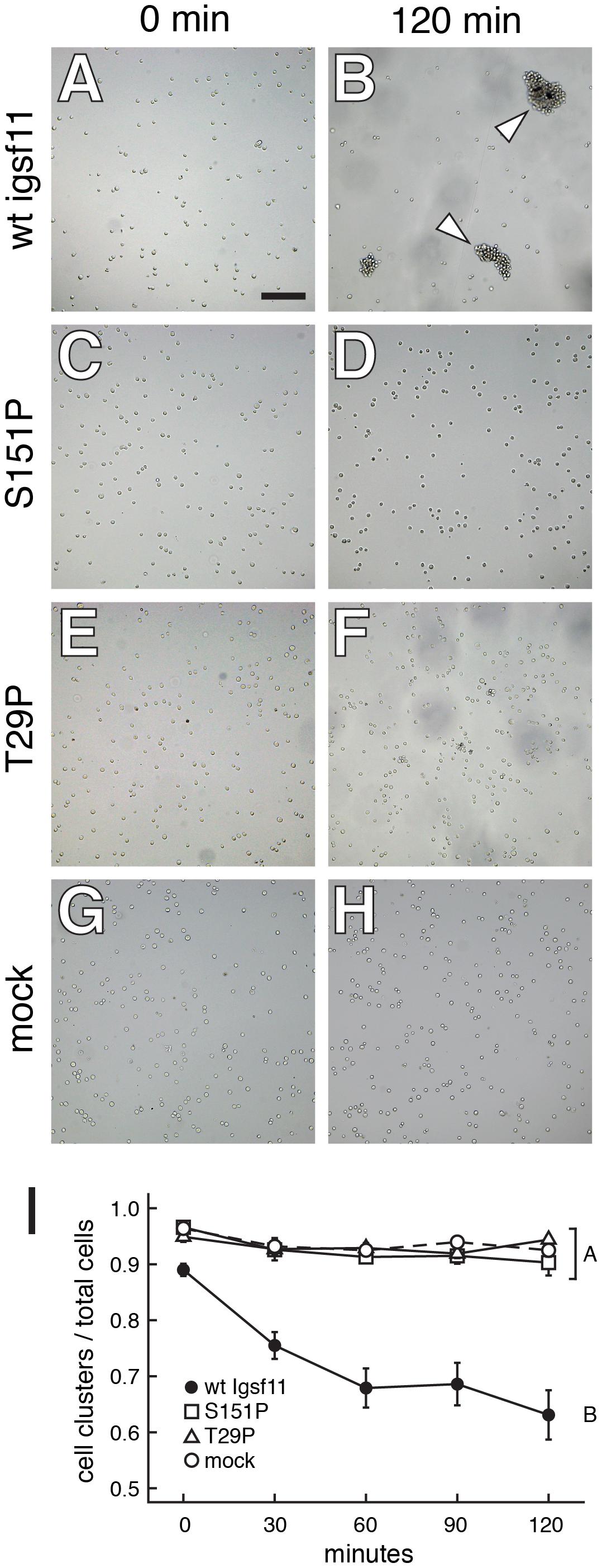 Igsf11 promotes aggregation of K562 myeloid leukemia cells in vitro.
