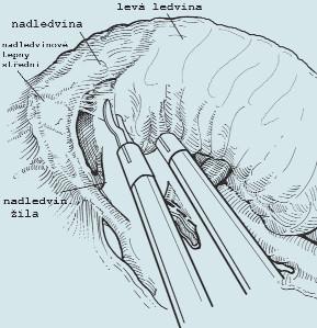 Oddělení ledviny od nadledviny a následné uvolnění celé ledviny i s tukovým pouzdrem.