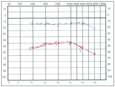 Audiogram – náhla percepčná kochleárna porucha sluchu vpravo.