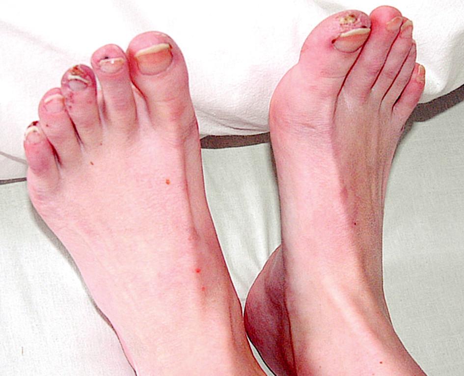 Vaskulitický defekt palce PDK, na 2.-5.prstu LDK třískovité hemoragie.
