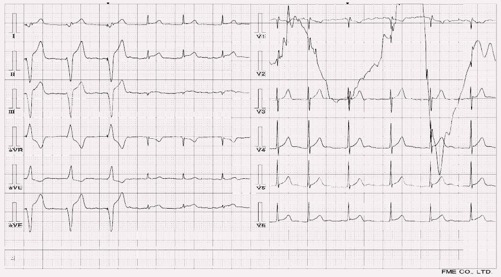 Akutní infarkt myokardu dolní stěny u pacienta s kardiostimulátorem (První tři QRS v končetinových svodech jsou stimulované komplexy, následuje akce s vlastním převodem na komory a elevacemi II, aVF, V5-6).