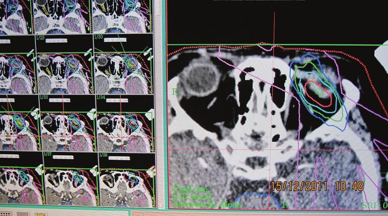 Izodózový plán pacientky pre stereotaktická rádiochirurgiu v TD 35,0Gy. Schéma ožiarenia pri stereotaktickej rádiochirurgii: označenie nádorového ložiska s TD – terapeutickou dávkou ožiarenia 35,0 Gy je červenou farbou, rozsah ožiarenia okolitých štruktúr dávkou 15,0 Gy zelenou farbou, 10,0 Gy modrou farbou, 2,0 Gy fialovou farbou