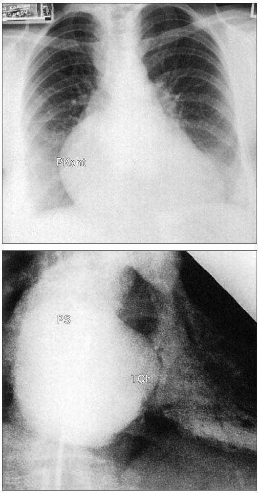 RTG trikuspidální stenózy. a) Frontální snímek ukazuje zvětšení kontury pravého srdce a jeho vyklenutí doprava. b) Doprovodný angiogram pravé síně v mírně pravé přední šikmé projekci ukazuje velkou pravou síň s ouškem a také ztluštělou stenotickou trikuspidální chlopeň.