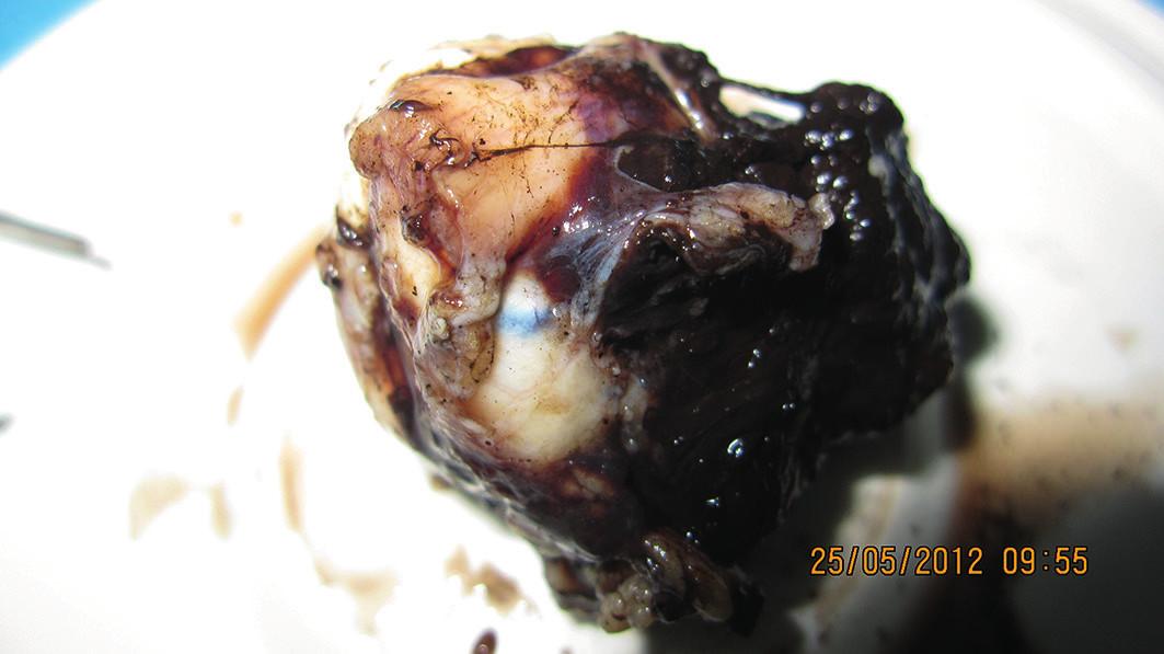 Pohľad na zadnú časť očnej gule s retrobulbárne prerastajúcim melanómom