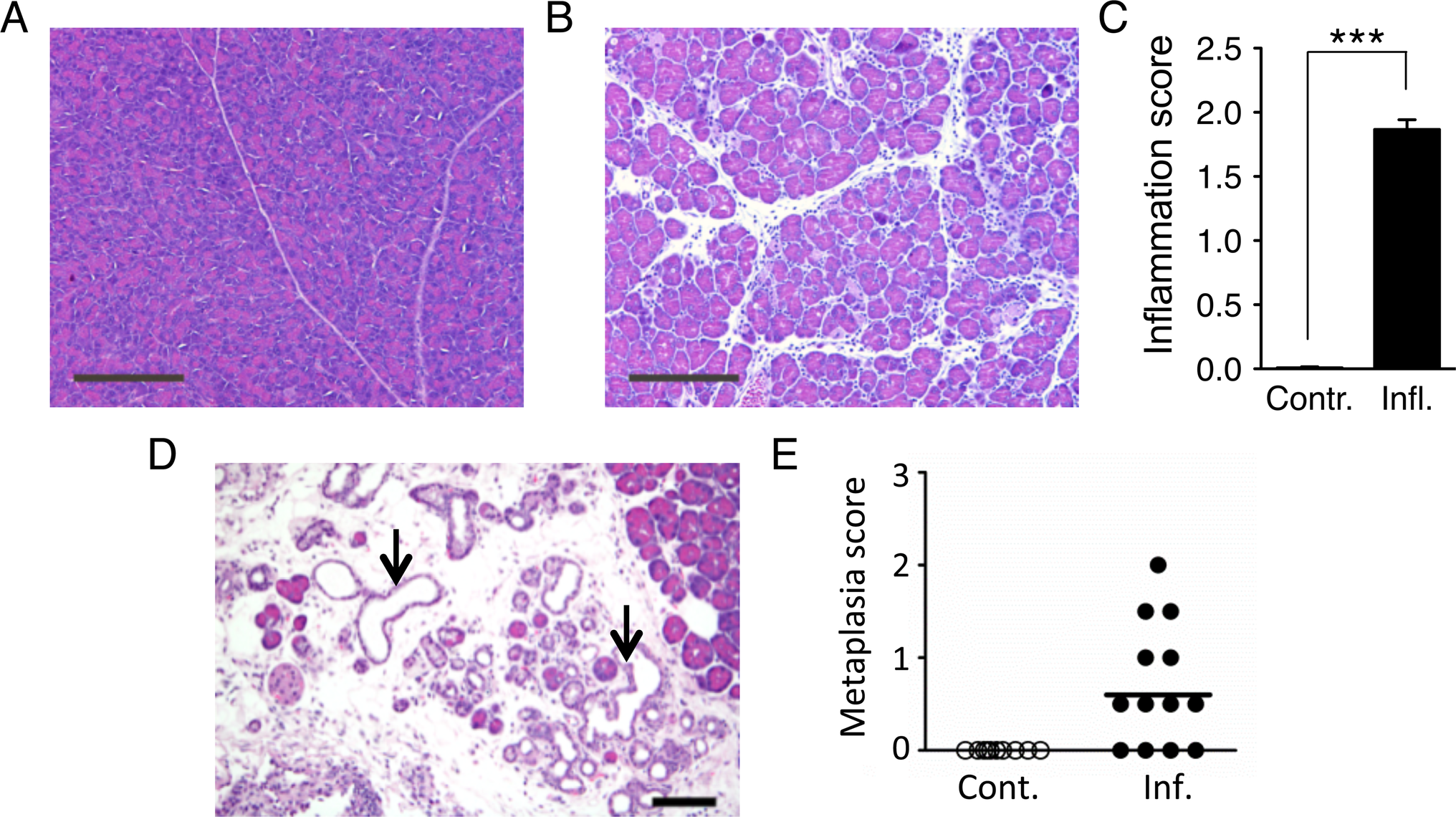 Cerulein treatment induces inflammation in the pancreas, and chronic cerulein pancreatitis induces metaplastic changes.