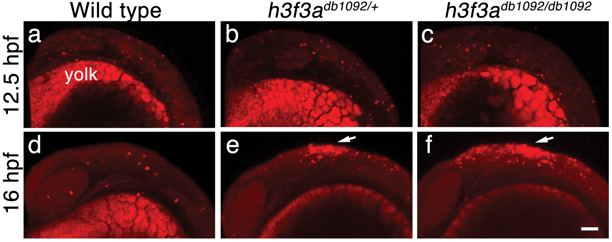 Cell death in <i>h3f3a<sup>db1092</sup></i> embryos.