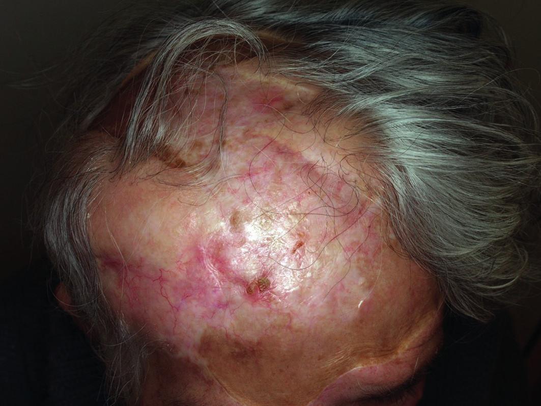 Obr. 3. Klinický nález bezprostředně po ukončení léčby (prosinec 2014)
