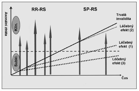 Logika léčby RS. Cílem léčby je oddálit nástup trvalé invalidity v důsledku ztráty axonů. Léčebný efekt (1) je výrazně větší při nasazení léčby po druhé atace, než ve stadiu klinicky definovaného onemocnění (2). Největší efekt lze ale očekávat při nasazení chronické terapie po první atace choroby (3).  (Převzato s laskavým svolením doc. MUDr. E. Havrdové, CSc., vedoucí RS centra 1. LF UK a VFN v Praze.)