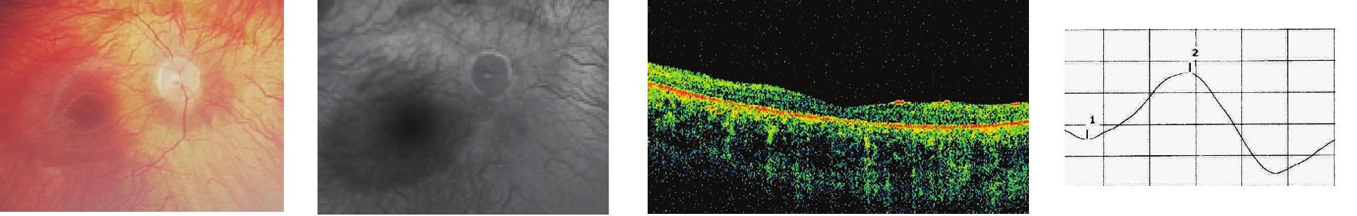 Difúzna forma TRD 5a Oftalmoskopický nález, 5b FAG nález, 5c Obraz OCT, 5d Záznam ERG