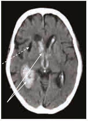 Masivní intraventrikulární krvácení (šipky) u warfarinizovaného pacienta (INR 4,3). Starší posthemoragická pseudocysta (přerušovaná šipka). CT vyšetření 40 min po příhodě.