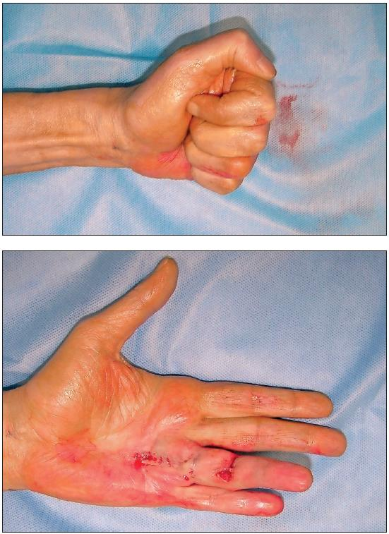 Fig. 3a,b. Post PNF. The affected finger is passively extended. The patient can instantly flex and actively extend the finger
