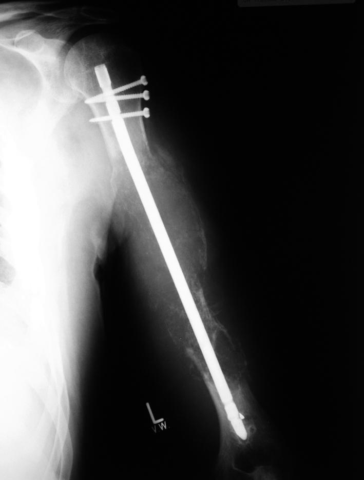 Rtg levého humeru před zahájením léčby lenalidomidem.