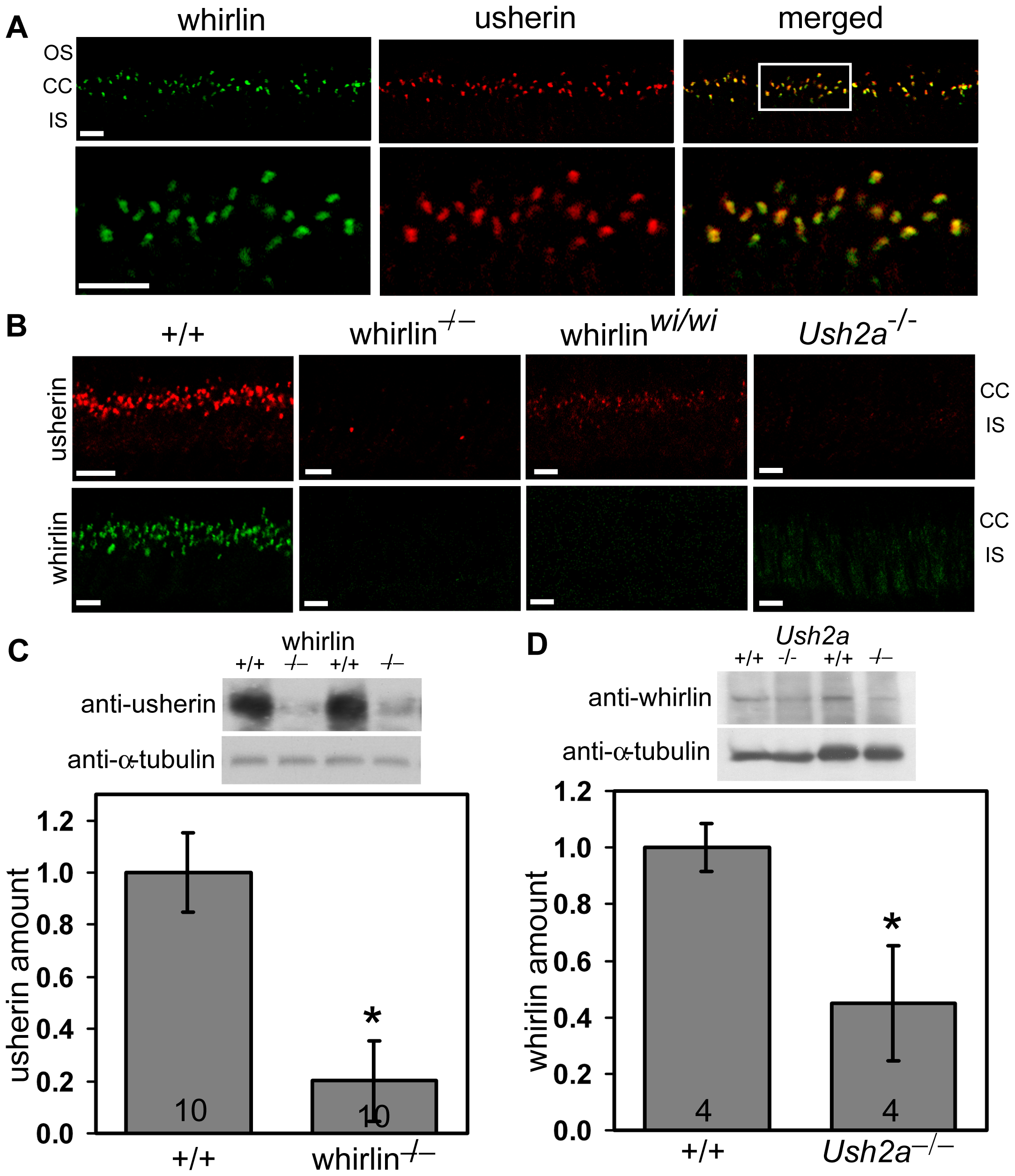 Whirlin and usherin are colocalized in photoreceptors.