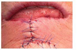 Sutura rány po operaci dolního rtu podle Szymanowského