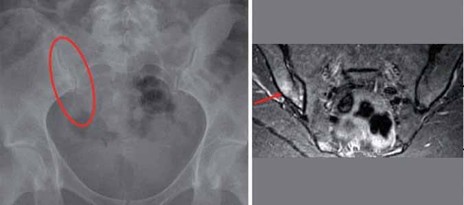 Jednostranná sakroiliitida II. st. vpravo (subchondrální sklerotizace, susp. incip. eroze) a nález podle MRI – edém kostní dřeně v oblasti pravého SI skloubení.