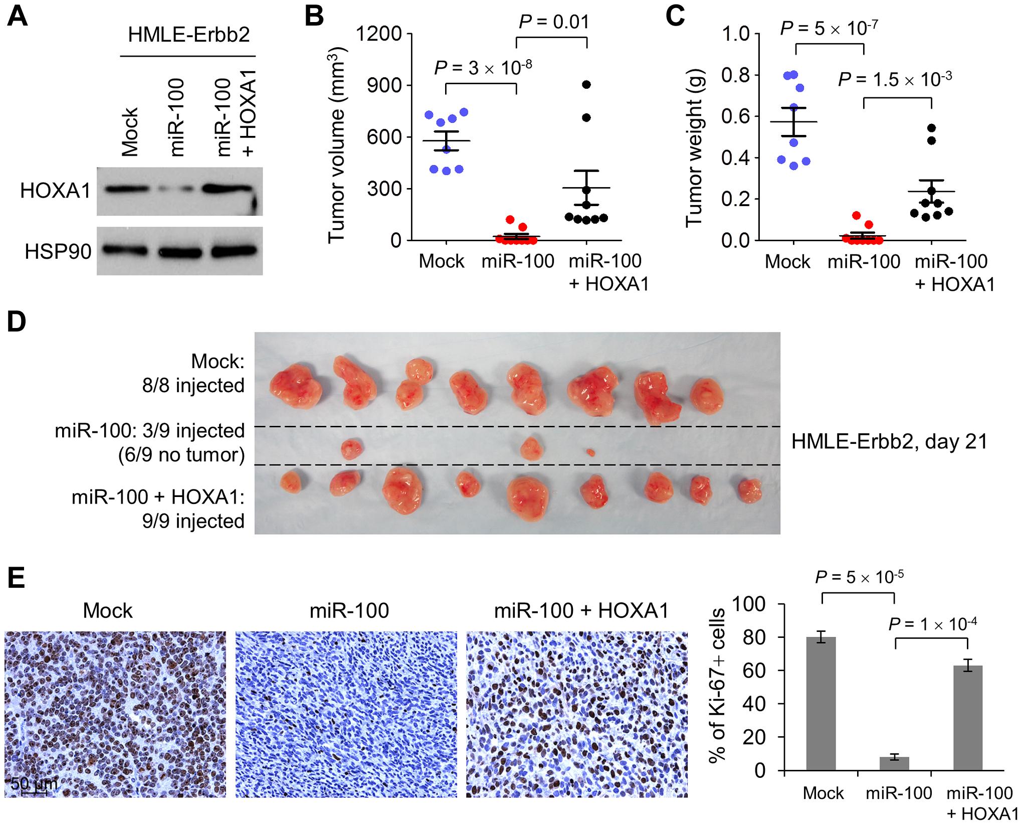 miR-100 suppresses tumorigenesis by targeting <i>HOXA1</i>.
