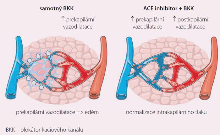 Mechanizmus účinku ACE inhibitorů na snížení otoků po kalciových blokátorech.