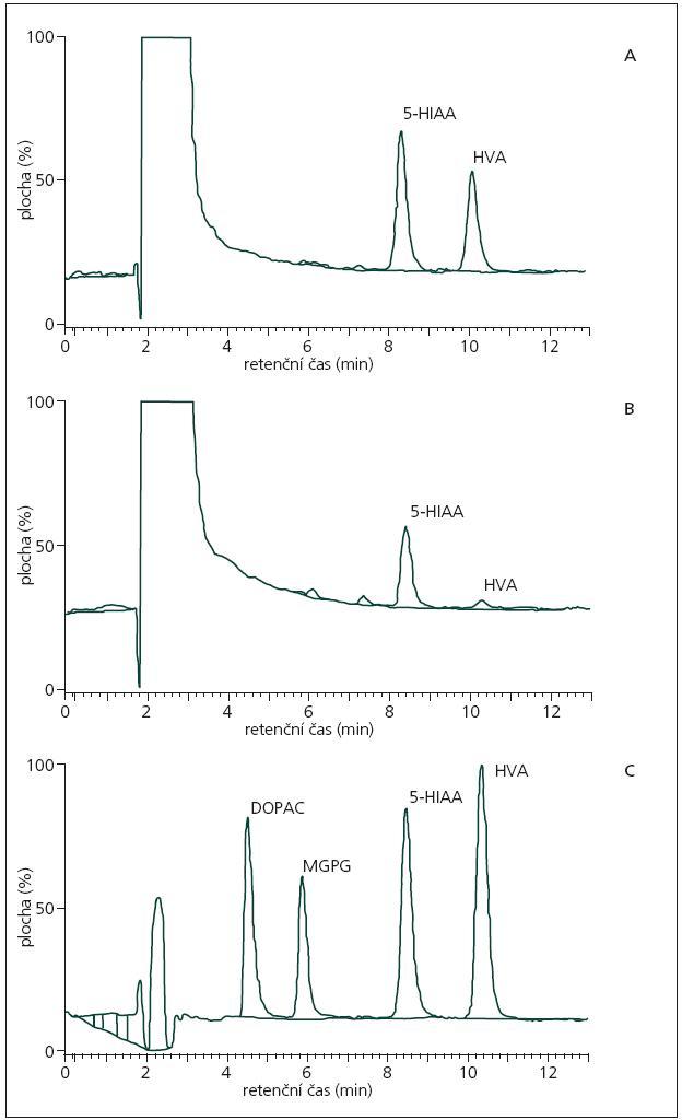 Chromatogramy analýzy neurotransmiterů v mozkomíšním moku pomocí vysoce účinné kapalinové chromatografie. 1a. Kontrola – normální profil neurotransmiterových metabolitů. 1b. Pacient s poruchou v syntéze dopaminu. 1c. Standardní směs metabolitů: DOPAC, MHPG, 5-HIAA, HVA. Podmínky analýzy: mobilní fáze: citrát-acetátový pufr, pH 5,1; EDTA 0,1 mmol/l, 15% metanol; průtok 0,3 ml/min.; potenciál 0,85 V; ampérometrický detektor (Gilson 141); kolona Phenomenex: EZ faast 250 mm × 2 mm, průměr částic 4 μm; dávkovaný objem 50 μl. DOPAC: dihydroxyfenylacetát; MHPG: 3-methoxy-4-hydroxyfenylglykol; 5-HIAA: 5-hydroxyindolacetát; HVA: kyselina homovanilová.