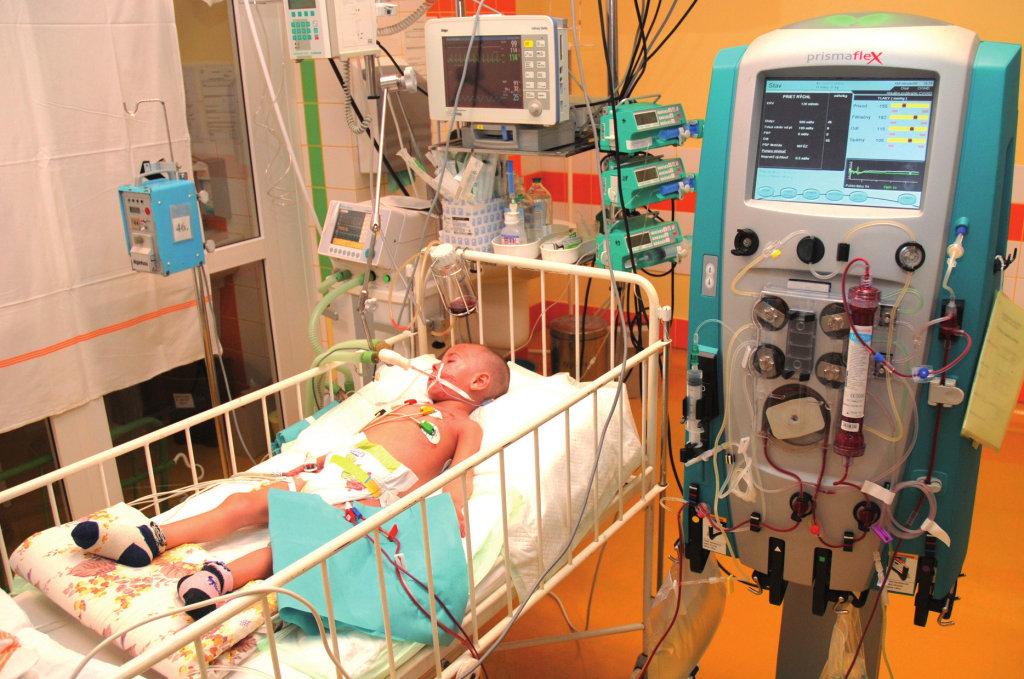 CVVHD (kontinuálna veno-venózna hemodialýza) u kriticky chorého dieťaťa. Fig. 1. CVVHD in critically ill patient.