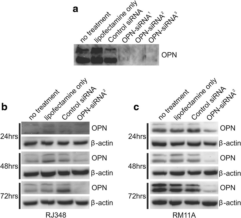 Representative western blots showing OPN protein levels in (a) RM11A cell following no treatment, treatment with lipofectamine only, treatment with a GC control siRNA or 3 different siRNAs targeting different regions on OPN mRNA. Representative western blots of OPN protein level following no treatment, treatment with lipofectamine only, treatment with a GC control siRNA or treatment with OPN- siRNA<sup>2</sup> in (b) RJ348 cells and (c) RM11A cells 24, 48 or 72 h after transfection