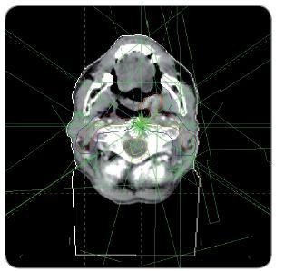 Plánovací CT snímek s vyznačenými cílovými objemy a ozařovaných polí.