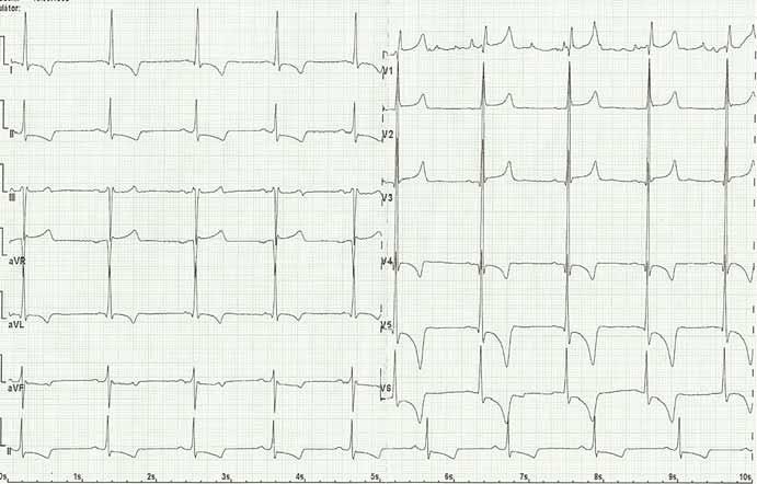 Elektrokardiogram pacienta s Fabryho chorobou: sinusový rytmus, pravidelný, bradykardie 55/min, PQ 170 ms, QRS 100 ms, QT 415 ms, známky hypertrofie levé komory s jejím zatížením (Sokolow, Lyon index, inverze T vlny a deprese ST úseku). Fig. 5. Electrocardiogram of Fabry disease patient: sinus rhythm, regular, bradycardia 55/min, left ventricular hypertrophy, PQ 170 ms, QRS 100 ms, QT 415 ms, signs of the left ventricula hypertrophy with its load (Sokolow, Lyon index, inverted T wave and ST depression).