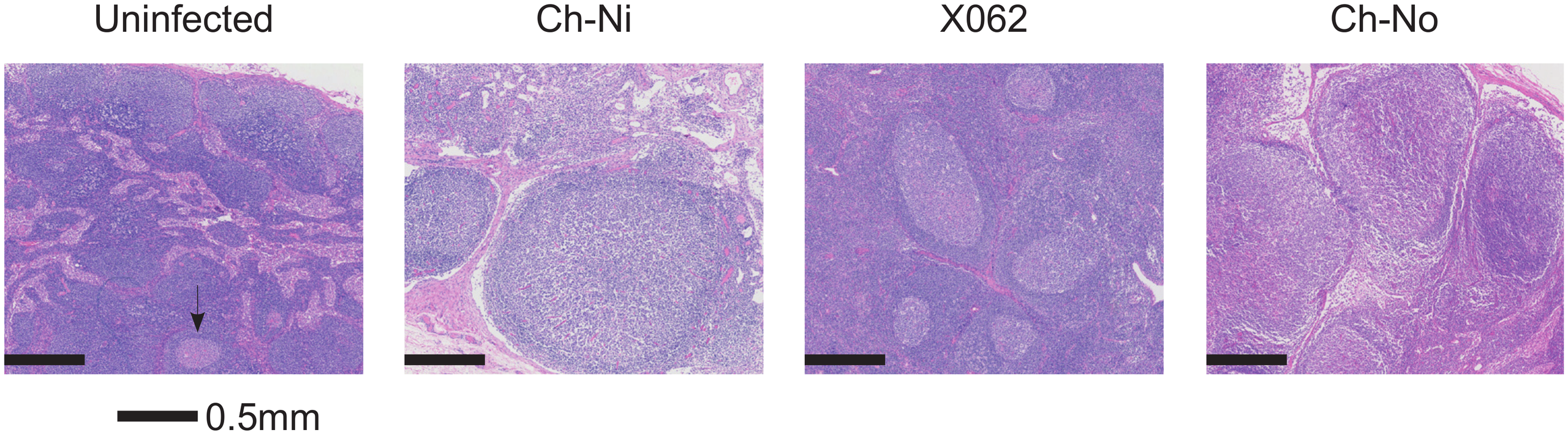 Lymphoid hyperplasia in SIVcpz infected chimpanzees.