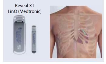 Obr. Implantovateľné slučkové rekordéry EKG