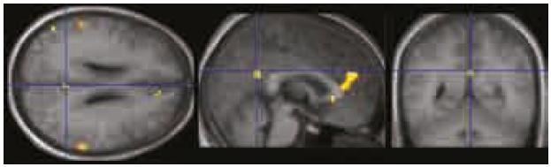 Oblasti deaktivující se v průběhu vizuálního kognitivního úkolu se nacházejí v pravém precuneu/zadním cingulu, pravém ventromediálním prefrontálním kortexu a v lobulus parietalis inferior bilaterálně. Jde o sníženou aktivitu (deaktivaci) v DMS oproti jejímu základnímu stavu, který představuje resting state. Zobrazeno při p < 0,0001 nekorigovaně.
