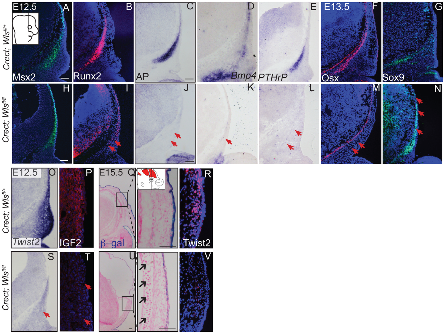 Ectoderm deletion of <i>Wntless</i> leads to loss of cranial bone and dermal lineage markers in the mesenchyme.