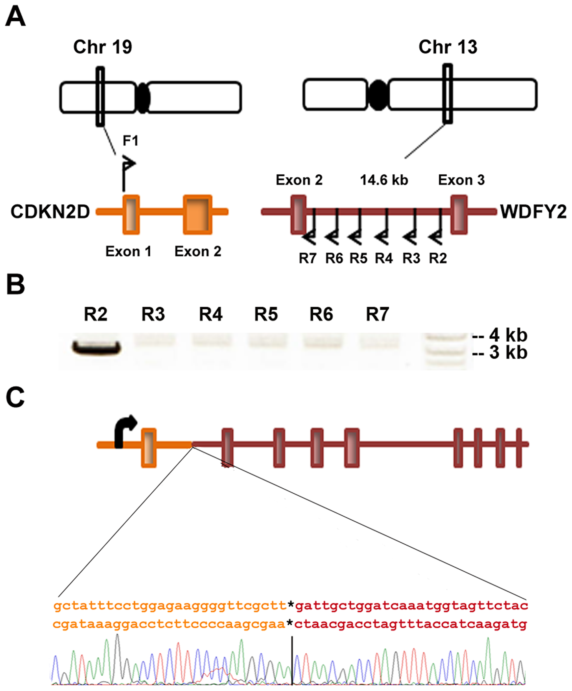 <i>CDKN2D-WDFY2</i> fusion transcript results from a genomic rearrangement of chromosome 19 and 13.