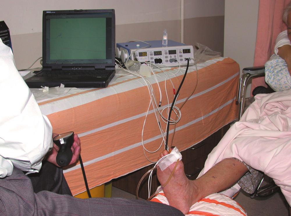 Systém Periflux 5000 + sonda přiložená na palci PDK.