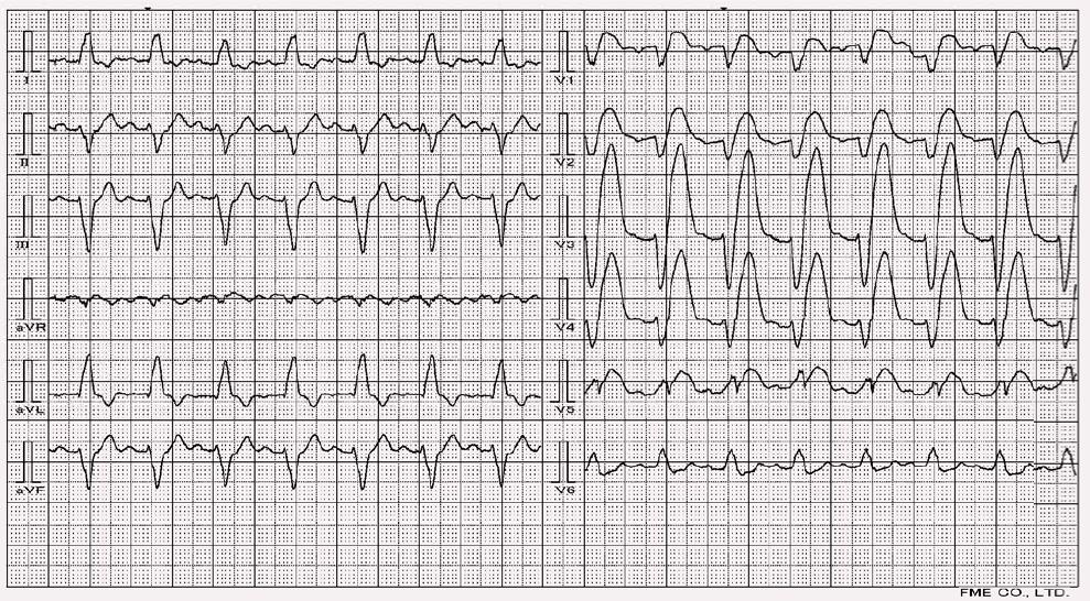 Blok levého raménka Tawarova a akutní infarkt myokardu přední stěny.