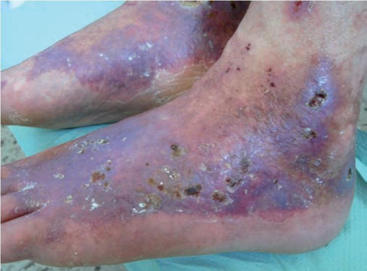 Livedo vaskulopatie: livedo racemosa, retiformní purpura a hvězdicovité ulcerace s hemoragickými krustami